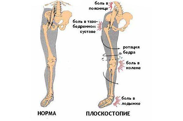 Влияние плоскостопия на колени